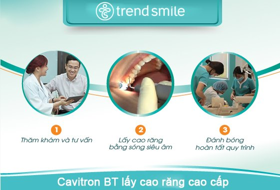 CAVITRON BP - Lấy cao răng nhanh, sạch mảng bám, không đau, không ê buốt ⋆ Nha Khoa Quốc Tế Trend Smile - Thiết kế nụ cười